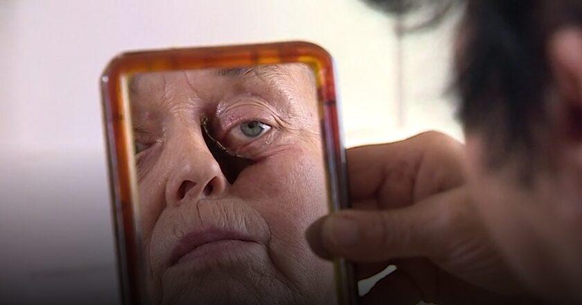 Kobieta oczekująca operacji twarzy