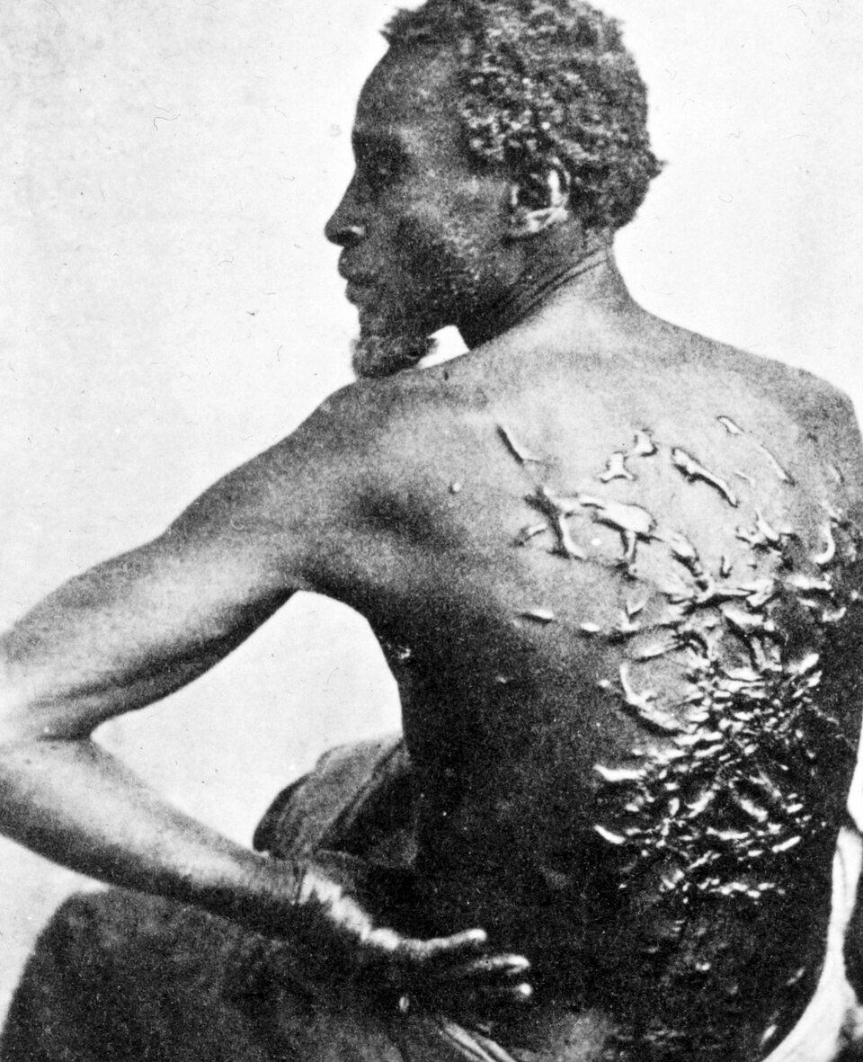 Niewolnik, który zbiegł z plantacji bawełny w Mississippi, 1863 rok